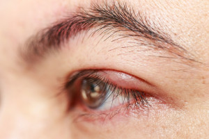 "Left upper eye lid abscess ""stye or hordeolum"""
